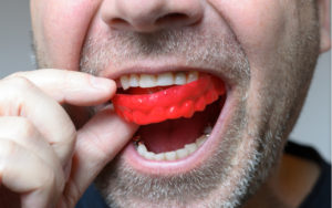 red mouthguard